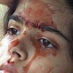 Una niña que llora sangre